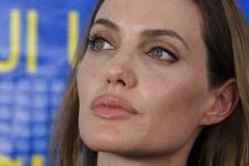 Angelina Jolie Terserang Bell's Palsy