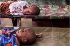 11 Pasien Gizi Buruk Masih Jalani Perawatan di RSUD Agats
