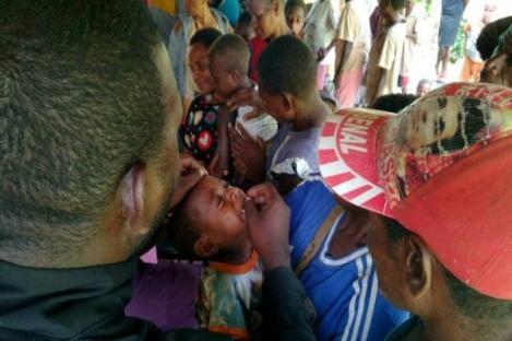 67 Anak Meninggal Akibat Wabah Campak-Gizi Buruk di Asmat