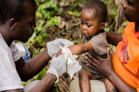 Cacar Monyet Antisipasi Indonesia dan Tiga Hal Lain tentang Virus Asal Afrika